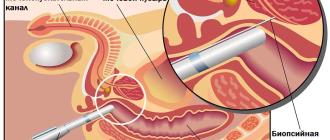 Биопсия простаты: в чем суть подобного исследования?